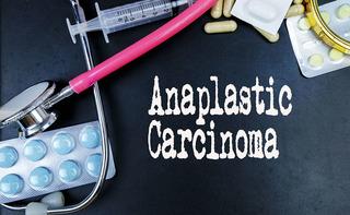 Carcinoma anaplastico