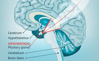 Ipersecrezione degli ormoni dell'ipofisi anteriore