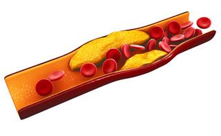 Malattia da accumulo di esteri del colesterolo