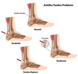 Tendine di Achille infiammato