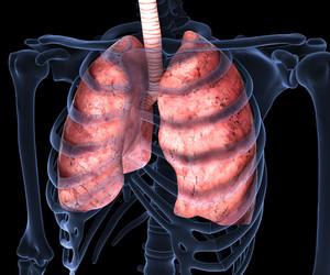 Malattia polmonare interstiziale: sintomi, diagnosi, cura Malattia interstizio polmonare
