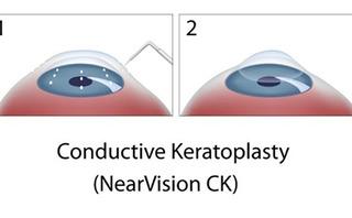 Cheratoplastica