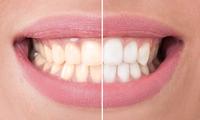 Sbiancamento dei denti | Pazienti.it