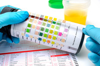 Esame delle urine | Pazienti.it