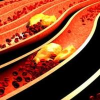 Colesterolo_alto | Pazienti.it