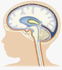 Idrocefalo normoteso | Pazienti.it