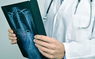 Rx colonna vertebrale