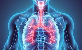 Stenosi bronchiale