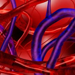 Arterite di Horton