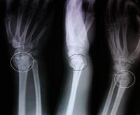 Frattura di Colles | Pazienti.it