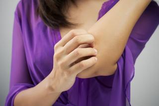 Antifungini in dermatologia
