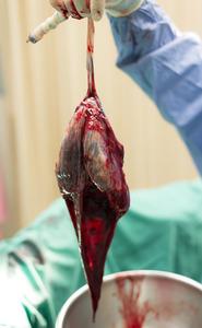 Sacco amniotico  | Pazienti.it