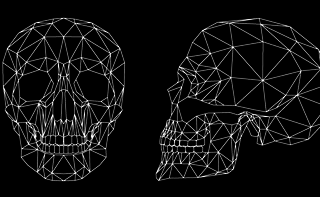Cranioplastica
