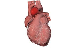 Aneurisma ventricolare