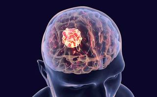 Emangiopericitoma