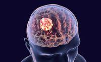 Emangiopericitoma | Pazienti.it