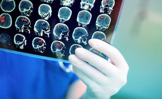 Edema cerebrale
