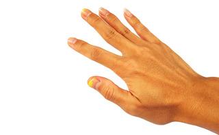 Disturbi alle unghie