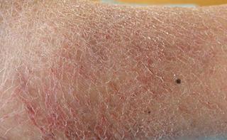 Eczematide