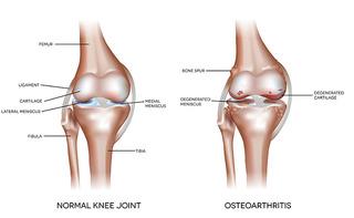 Osteoartrosi del ginocchio
