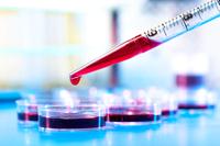 Test dell'Alanina aminotransferasi (ALT)