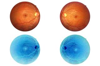 Bastoncello retinico