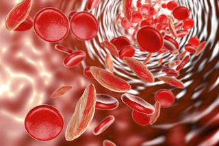 Anemia mediterranea
