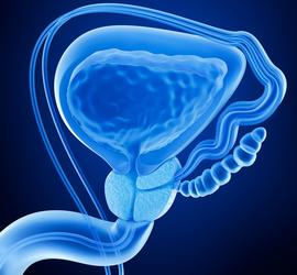 Prostata Infiammata nella Zona dell'Uretra