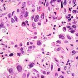 Adenocarcinoma