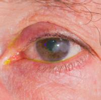 Herpes oculare | Pazienti.it