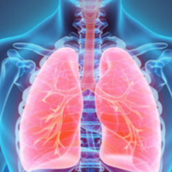 Focolaio polmonare