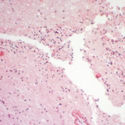 Meningioma cerebrale