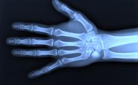 Raggi X | Pazienti.it
