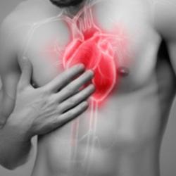 Ectasia aortica