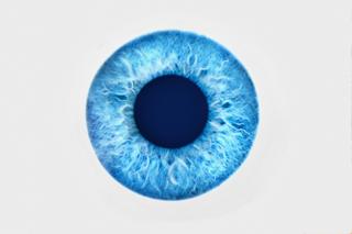 Edema corneale