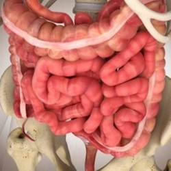 Infarto intestinale