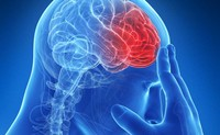 Vasculopatia cerebrale