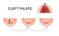 Palatoschisi | Pazienti.it