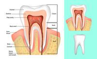 Radice dentale