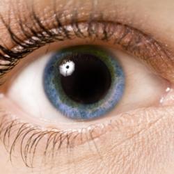 Pupille dilatate