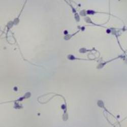 Sperma Espulso e Raccolto per la Spermiocoltura