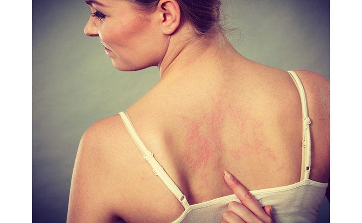 trattamento di dermatite da pannolino del pene)