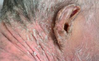 Infezioni fungine