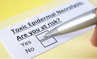 Necrolisi epidermica tossica