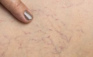 Capillari fragili (fragilità capillare)