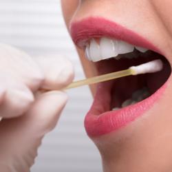 Test della saliva