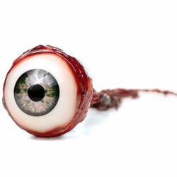 Ischemia del nervo ottico