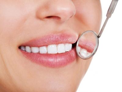 Ablazione del tartaro con smacchiamento o air flow - Dr. Valentina Moscovio | Pazienti.it