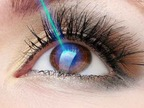 Yag laser - CMA | Pazienti.it