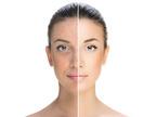 Consulenza acne | Pazienti.it